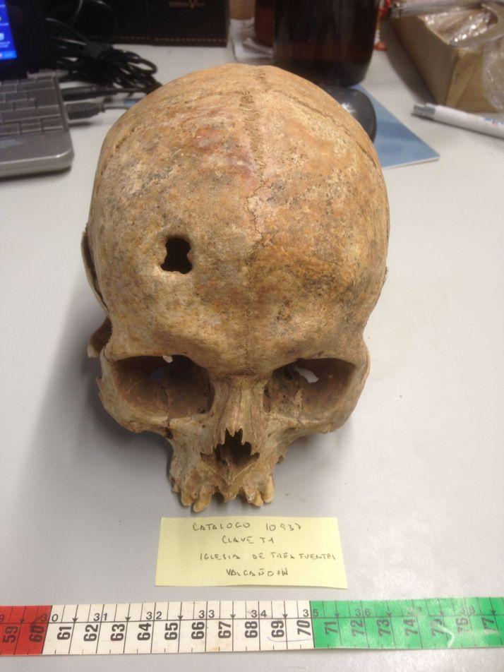 El saber médico en la Soria alto-medieval | Imagen 3